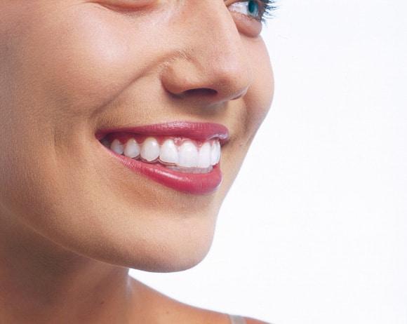 invisalign ortodoncia