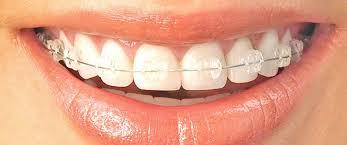 ortodoncista albacete